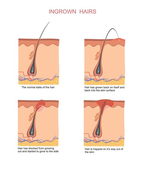 how to exfoliate legs with ingrown hairs how to stop ingrown hairs before they get infected
