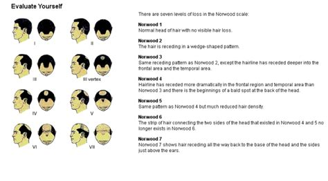 male pattern hair loss scale hair transplant procedure success and reviews may 2013