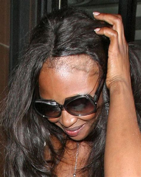 thinning hairline weave naomi cbell bald from hair extensions