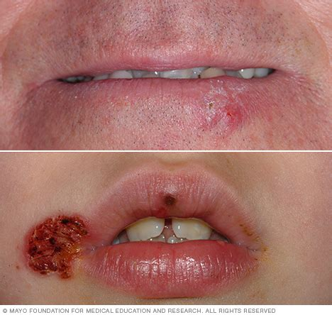 Section Scar And Sore by Cold Sore Symptoms And Causes Mayo Clinic