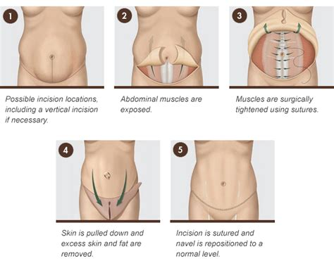 tummy tuck belt after c section tummy tuck for rochester syracuse ny quatela center