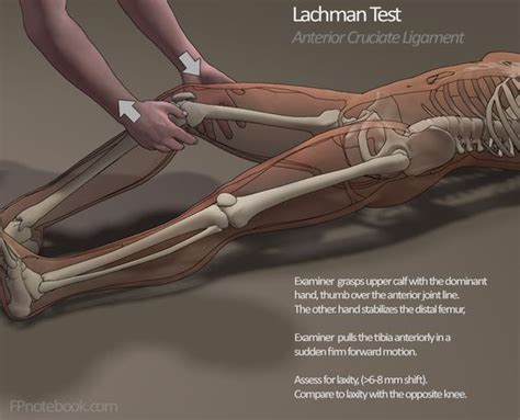 Lachman Drawer by Mcmurray Test Rehabilitation