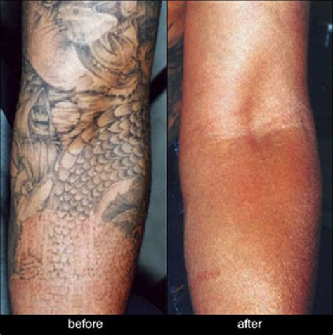 laser tattoo removal before and after gallery