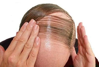 hormones hair elastics and a helmet the and science of successfully coaching athletes books the reasons of hair loss