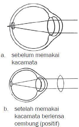 Lensa Cembung Ganda alat optik mata dan kacamata serta mekanisme proses