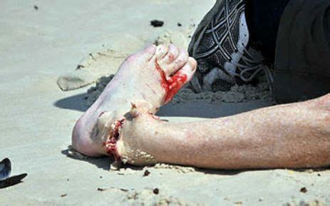 joyride shark attack south africa 2014 shark attack 2014 south africa google searchct officials