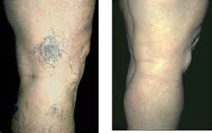 brustimplantate vorher nachher fotos krfadern und besenreiser bubenberg laser und