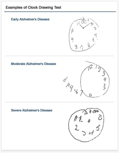 clock drawing test is your library dementia friendly 171 ifla libraries