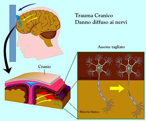 ematoma in testa cranico sintomi conseguenze e terapia