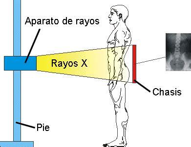 imagenes medicas rayos x radiograf 205 as