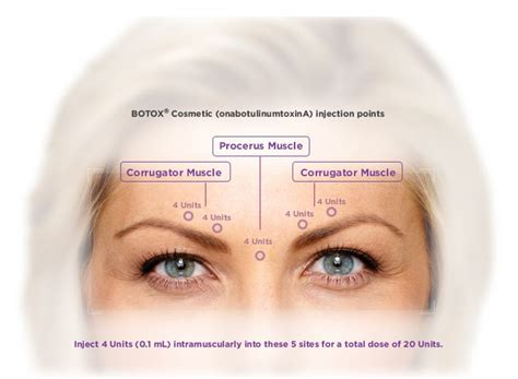 Botox Also Search For Botox Info Botox Lines Wrinkles