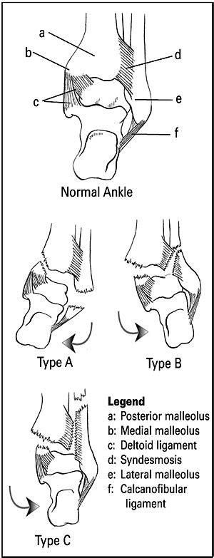 Ankle fractures - OrthopaedicsOne Clerkship - OrthopaedicsOne
