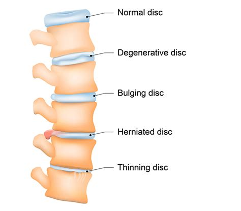 herniated disc diagram neck back sound solutions