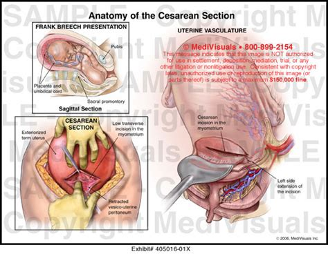 layers of abdomen in c section anatomy cesarean section