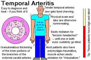 I Need To Ask A Doctor A Question by Temporal Artery Pain Doctor Answers On Healthtap