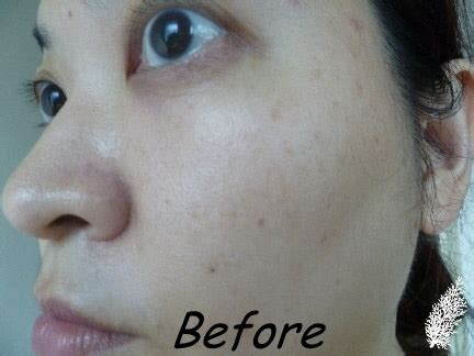 clinique even better before and after clinique even better makeup spf 15 pa