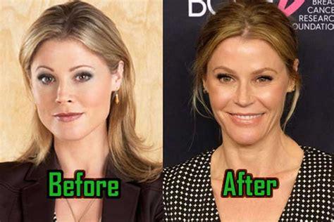 julie bowen plastic surgery facelift nose job boob job