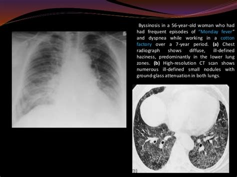 Oven Gas Lung occupational lung diseases radiology