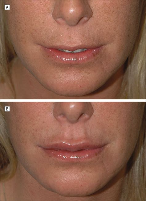 classification  lip zones  customize injectable