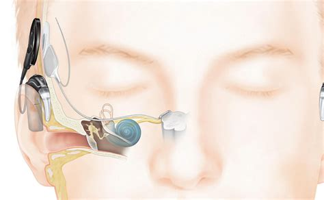 surgeons preserve patients hearing  innovative