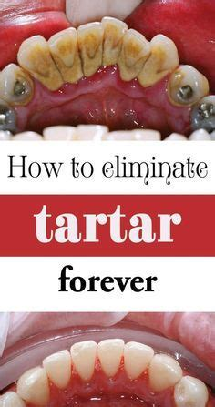 How Does Of Tartar Detox by 25 Best Ideas About Tartar Removal On How To