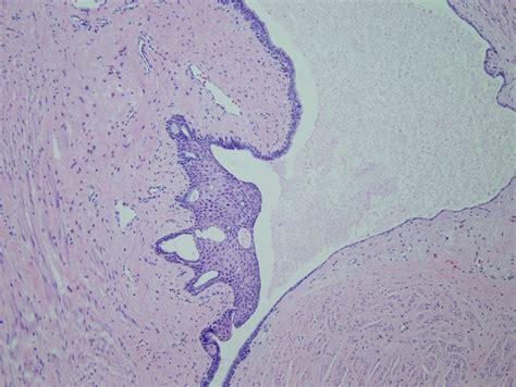 pilonidal cyst histology september 2010 residency program of the month