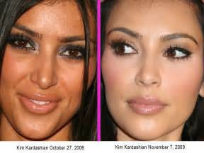 Before and after kim kardashian surgery or not pictures photos