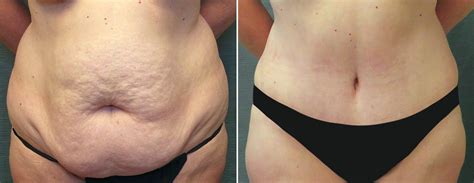plastic surgery after c section abdominoplasty before after photos kirby plastic