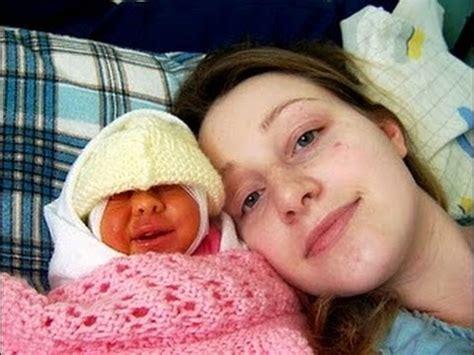 imagenes de niños que nacen con malformaciones el bebe que vivio sin cerebro faith anencefalia youtube