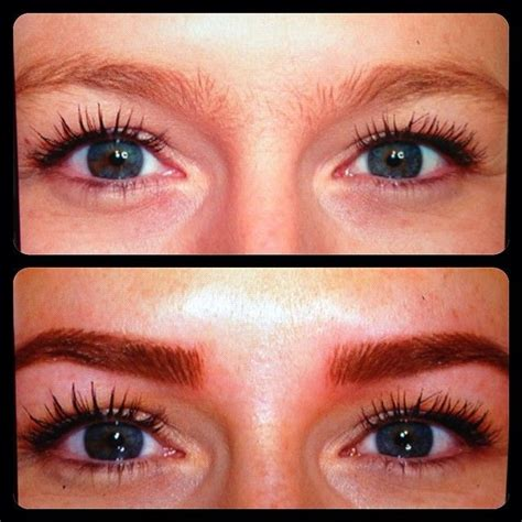 remove tattoo eyebrows laser eyebrow removal before and after tattoos