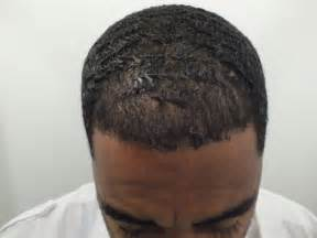 hairline restoration for black hair restoration in african americans black hair
