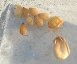Small Seeds In Stool by More Sesame Seeds Found In Bed Worm Eggs What S