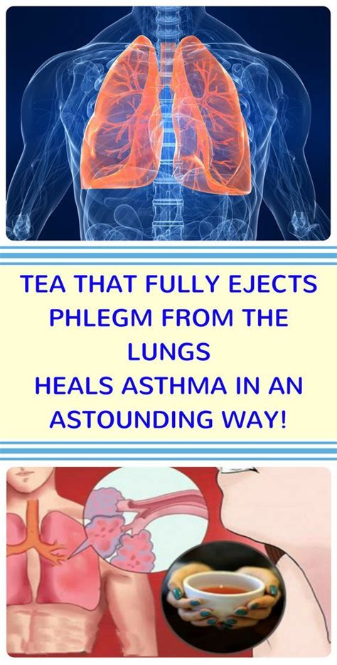 Detox Mucus Throat by 202 Best Images About Sarcoidosis On Asthma
