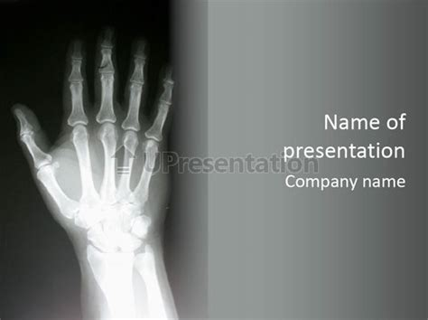 x ray of a hand powerpoint template id 0000062138