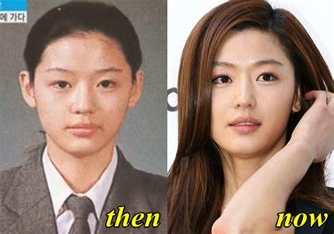 kim soo hyun surgery jun ji hyun plastic surgery