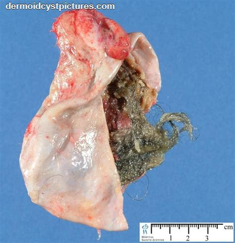 pictures of tumors and cysts dermoid tumor removal dermoidcystpictures
