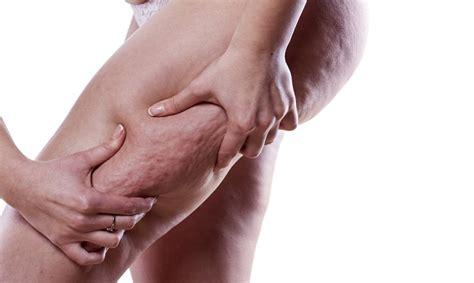 eliminare i cuscinetti di grasso sotto il sedere cellulite cause e rimedi come eliminare la buccia d