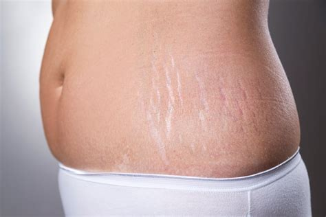 stretch marks after c section how to remove stretch marks after pregnancy 16 home remedies