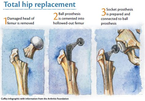 find a physician superpath hip replacement the lesser known facts about hip replacement surgery