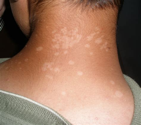 tinea versicolor a cause of circular patches on the trunk