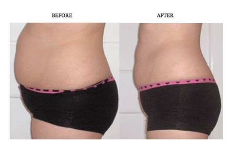 lipo light body contouring what is lipo light body contouring decoratingspecial com