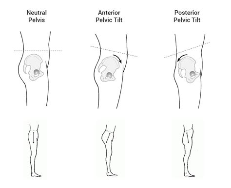 bow legged  knock kneed  proven surgery  correction methods straight legs blueprint