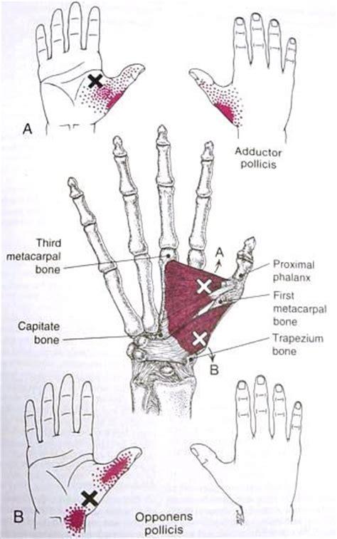 fibro trigger points diagram fibromyalgia points diagram 28 images fibromyalgia