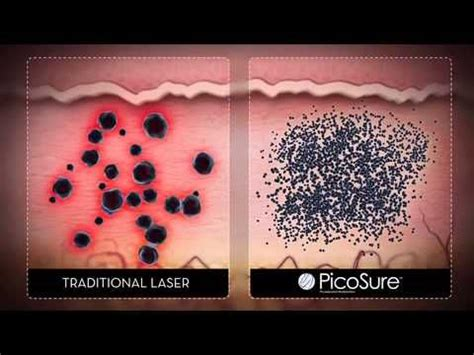laser tattoo removal jacksonville nc laser removal carolina how it works call