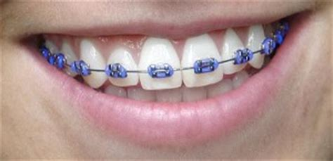 Bracket Behel Metal Sky Ortho colors for your braces