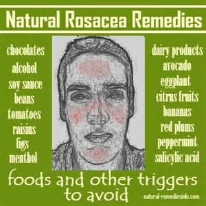 top 8 rosacea remedies and management