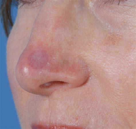 lower third nasal skin grafting intechopen