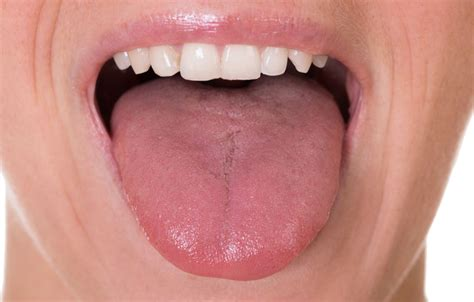 tongue color yellow tongue meaning causes cancer tongue and