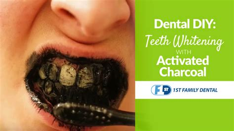 diy teeth whitening  activated charcoal st family