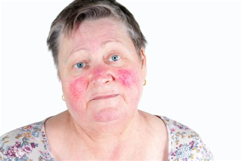 ruddy complexion pictures ruddy complexion common causes and natural treatment tips